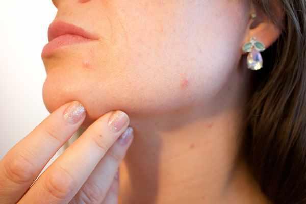 Metody leczenia i przyczyny trądziku u dorosłych